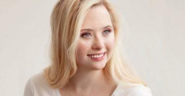 Grace Strobel, 24, menjadi model untuk kampanye SKINclusion dari Obagi. (Obagi via TheEpochTimes)